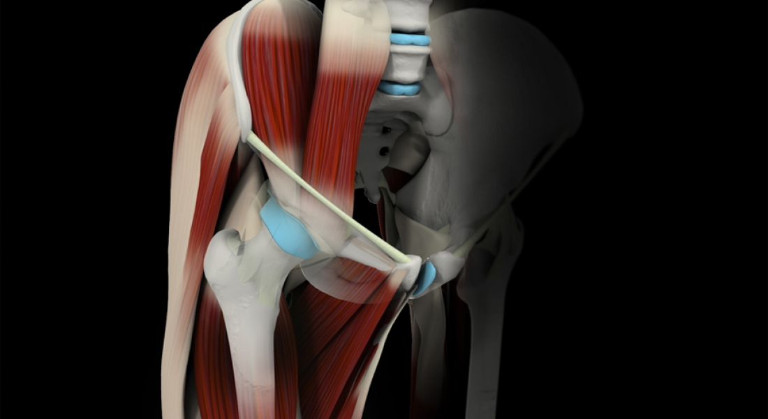 Simulador 3D Artrosis de Cadera - alterna3D