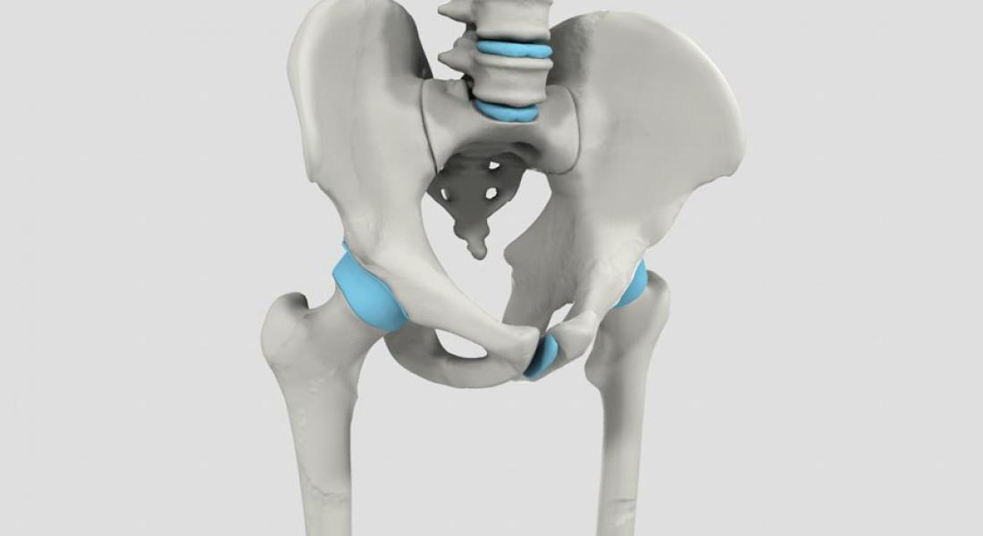 Simulador 3d artrosis de cadera alterna3d for Simulador habitacion 3d