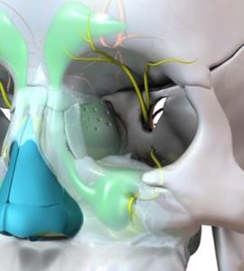 Simulador 3D Sinusitis