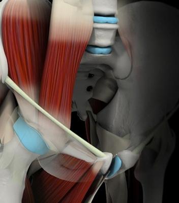 Simulador 3D Artrosis de Cadera